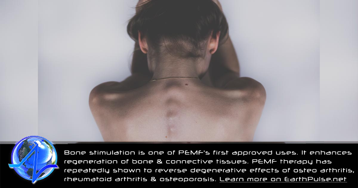 PEMF therapy for Bone & Connective Tissue Healing