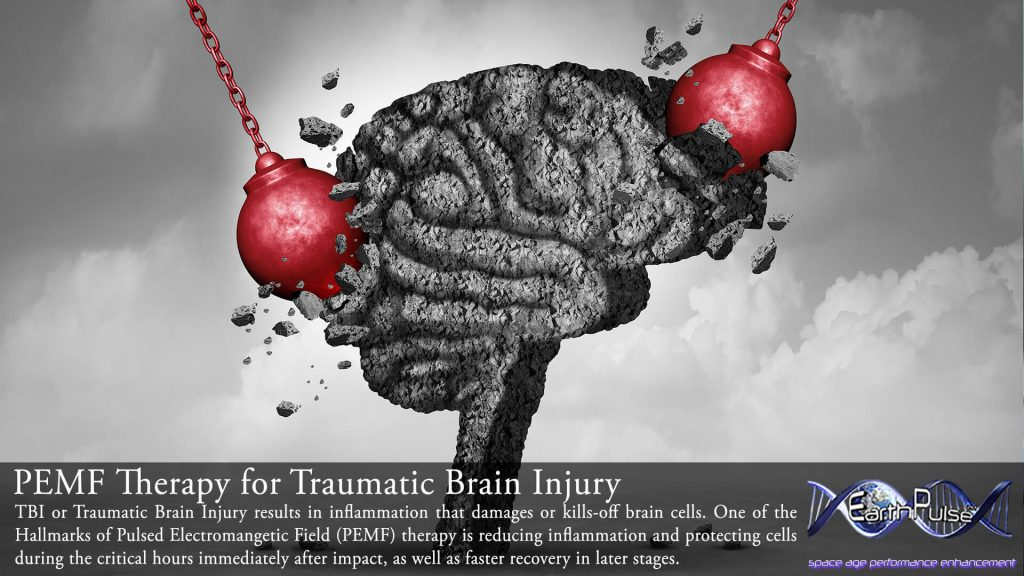 pulsed electromagnetic field therapy for traumatic brain injury and neurology